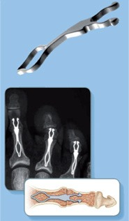 traitement arthrodèse inter-phalengienne 2