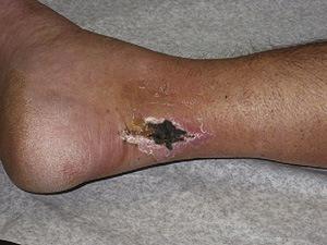 Trouble de cicatrisation cutanée 2