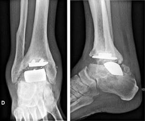 Descellement des prothèses
