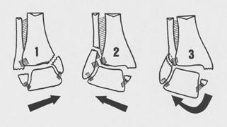 fracture uni ou bi malléolaire