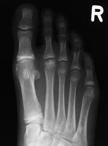 radiographie freiberg