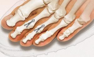 l'arthrodèse IP