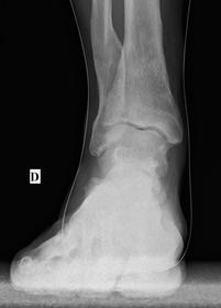 ostéotomie sur valgus d'arrière pied sur cal vicieux du tibia