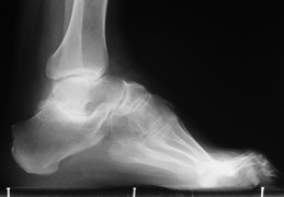 radiographie pied creux
