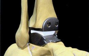 Prothèse  totale de la cheville