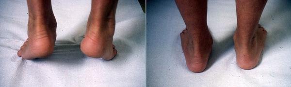 default de varisation de l'arrière pied
