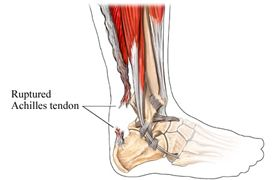 rupture tendon d'achille