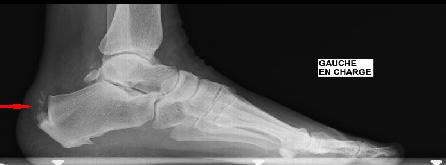 Radiographie enthésopathie calcifiante