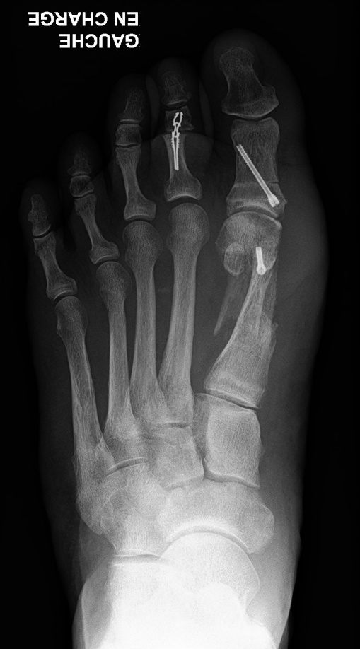 Photo avant/après correction d'un hallux valgus par chirurgie