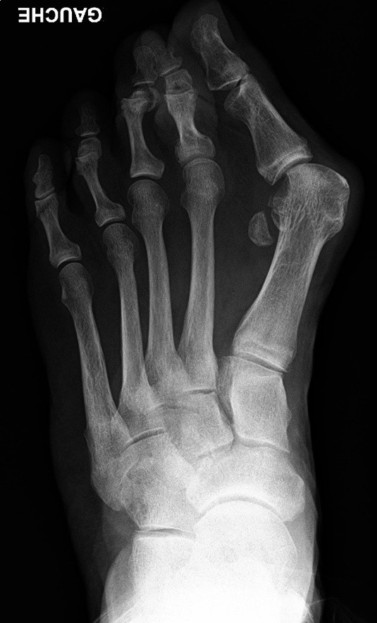Photo d'Hallux Valgus sévère